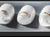 Goldstadtspangen werden bei  eingewachsenen Nägeln eingesetzt.